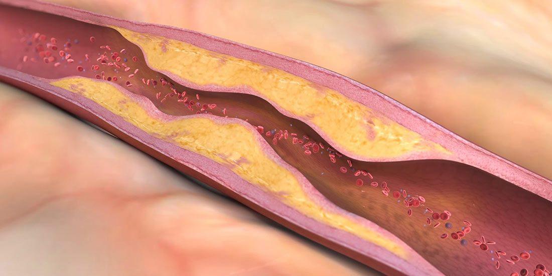 Клинично проучване на ефекта на натокиназа върху атеросклерозата и хиперлипидемията
